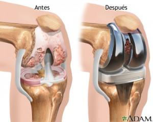 Gráfico antes y después de la colocación de una prótesis de rodilla.