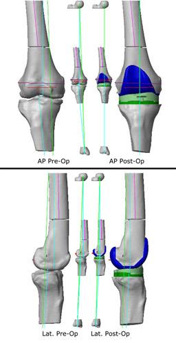 informe_protesis_rodilla_personalizada